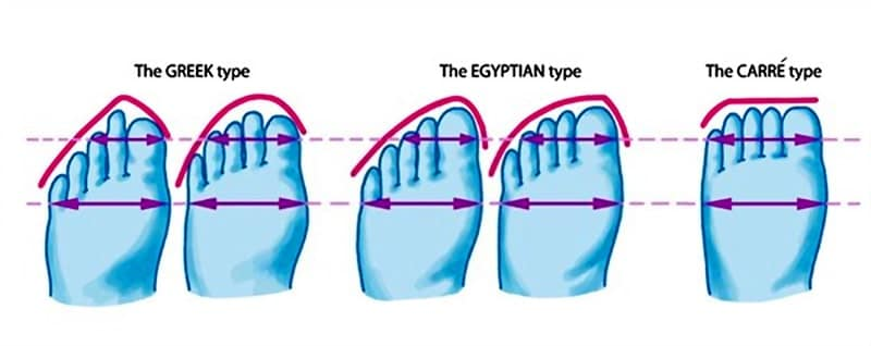 Three types of foot shape